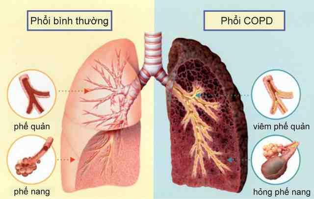 Bệnh phổi tắc nghẽn mạn tính, liệu có tắc nghẽn mãi trong trị liệu?