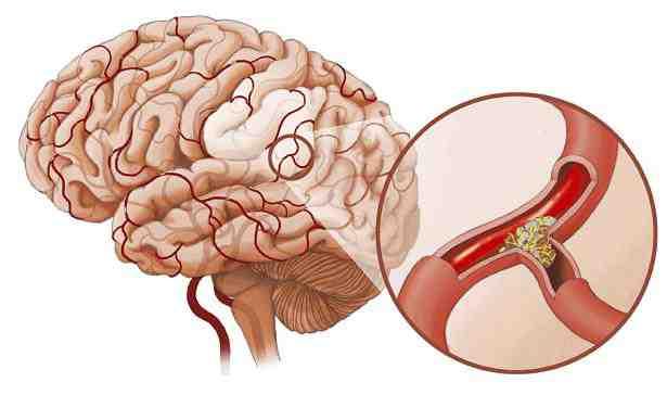 Phân loại nhồi huyết não và các thang điểm đánh giá