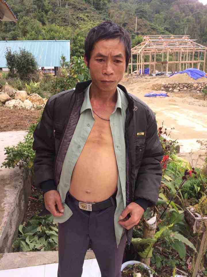 Nhân một trường hợp xơ gan cổ trướng ở xã Đản Ván - Hoàng Su Phì - Hà Giang