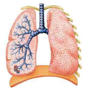 Chẩn đoán lao phổi