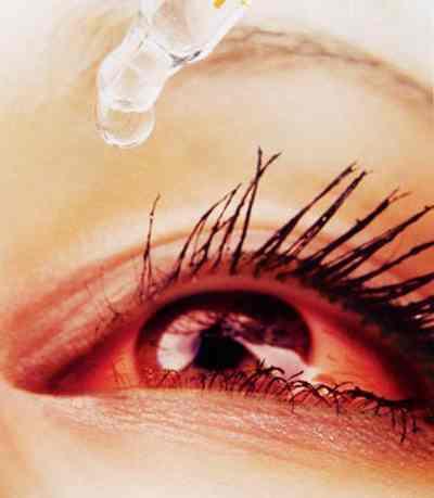 Chữa viêm kết mạc cấp (đau mắt đỏ) bằng thuốc Nam hiệu quả