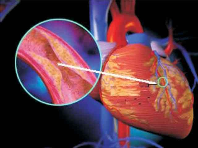 Thuốc nam với bệnh đái tháo đường (tăng đường huyết)