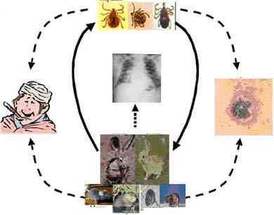 Bệnh Tularemia