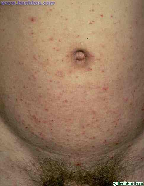 Ghẻ ( Scabies, Gale)