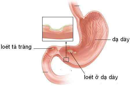 Viêm loét dạ dày – tá tràng
