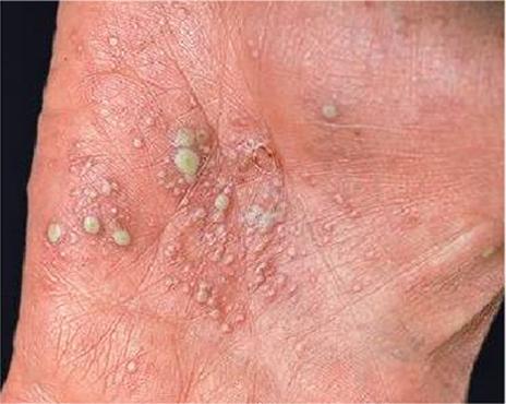 Miễn dịch và cơ chế miễn dịch của bệnh Vảy nến