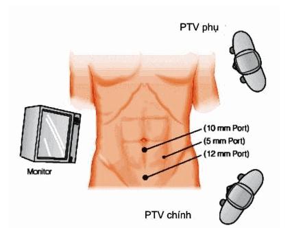 Phẫu thuật cắt ruột thừa nội soi
