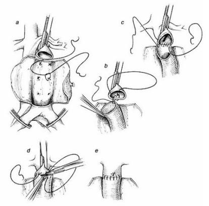 Phẫu thuật phình động mạch chủ bụng