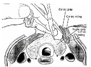 Phẫu thuật cắt thùy giáp