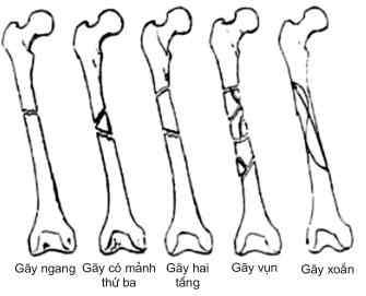 Gãy thân xương đùi