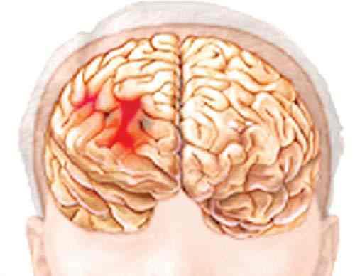 Xử trí bước đầu chấn thương sọ não