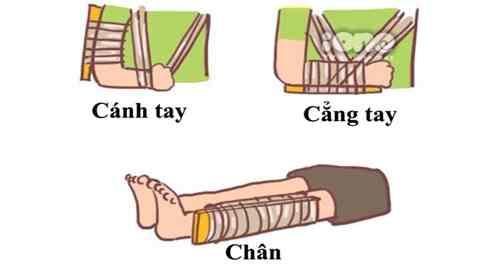 Cố định tạm thời gãy xương
