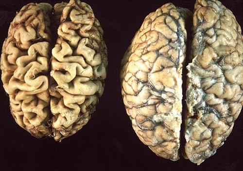 Bệnh alzheimer (AD)