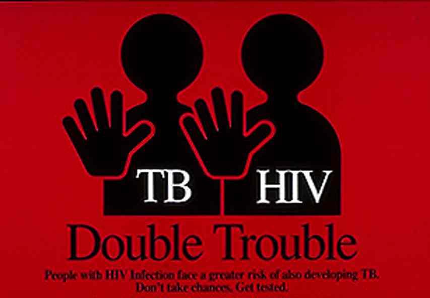 Tải về tài liệu TÌNH HÌNH LAO/HIV TẠI BỆNH VIỆN LAO VÀ BỆNH PHỔI THÁI NGUYÊN GIAI ĐOẠN 2007 – 2012