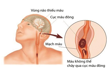 An cung Việt Nam - cứu cánh đáng tin cậy tai biến mạch máu não