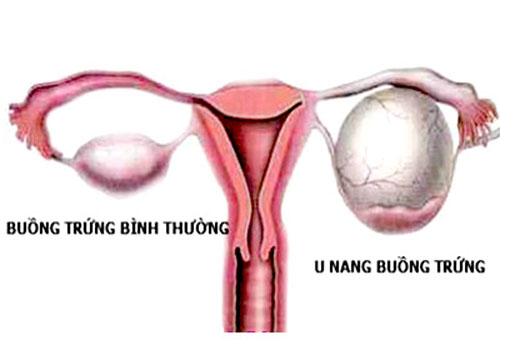 Bài thuốc nam hiệu quả với u nang buồng trứng